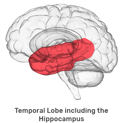 Temporal Lobe (includes the Hippocampus)